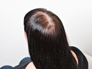 Жирная голова не растут волосы