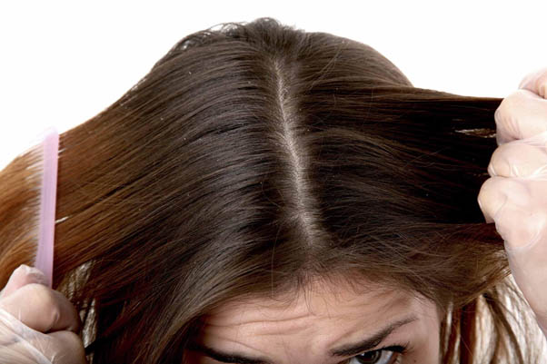 Признаки жирности волос