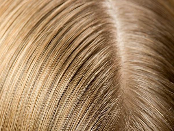 Волосы после лечения
